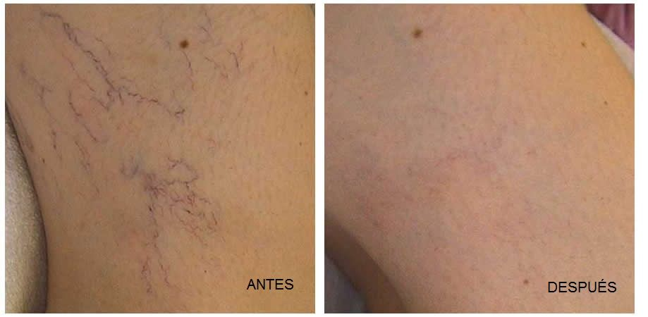 Antes-y-Despues esclerosis de varices